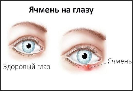 Если вскочил ячмень на правом глазу: приметы - народные приметы ячменя.