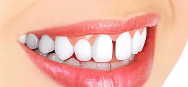 щербинка щель между зубами