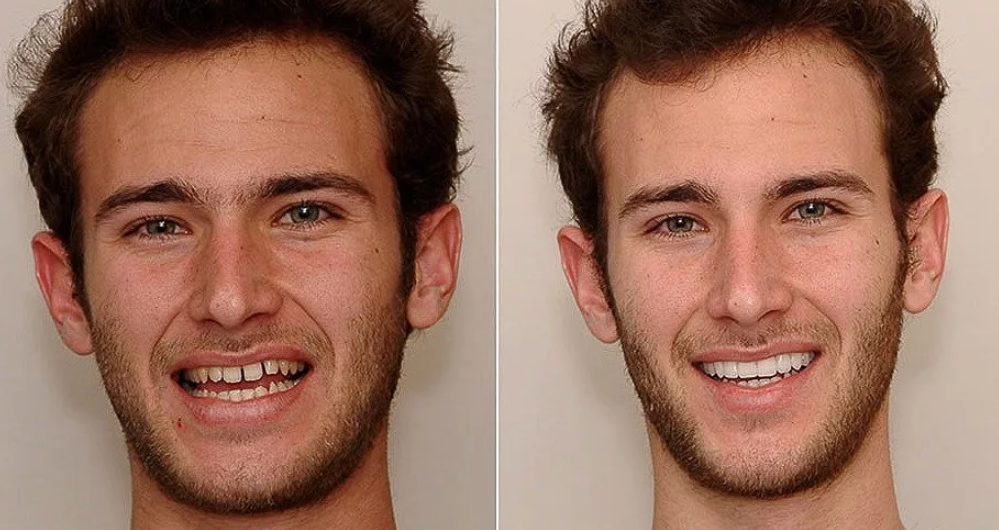 щербинка между зубами у парней