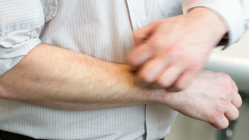 Чешется правая мужская рука
